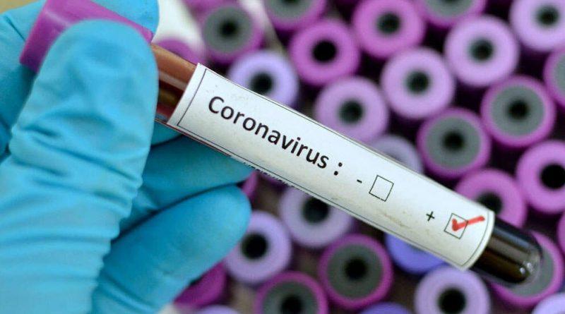 تحاليل تقصي فيروس كورونا